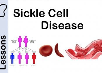 Nhlbi Hope For Sickle Cell Disease Challenge
